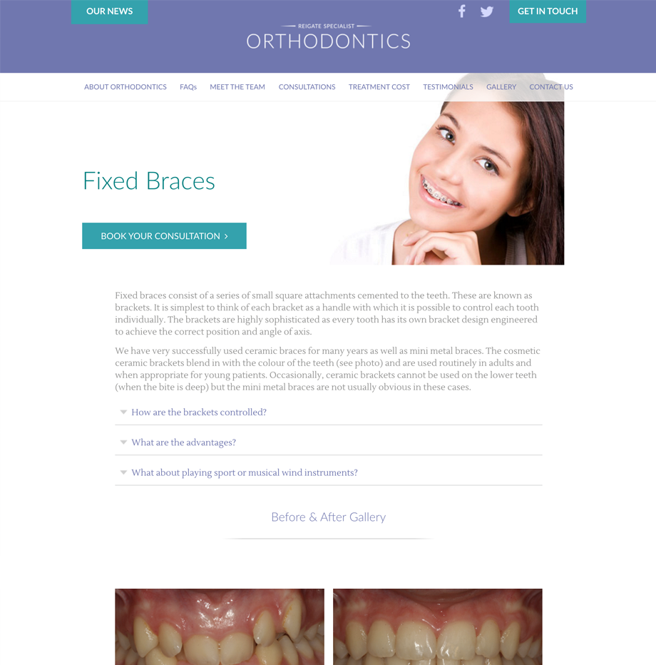 reigate-orthodontics-webpages-1.png